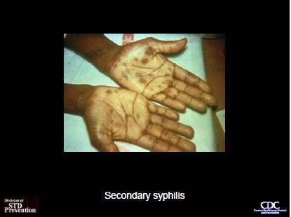 500mg amoxicillin 4 times a day