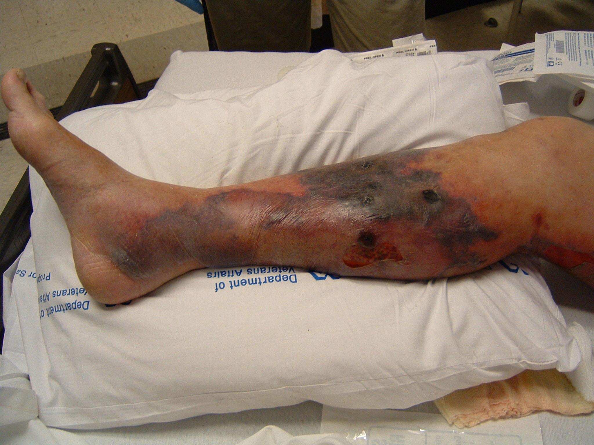 Signs Of Leg Gangrene 97
